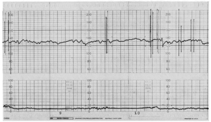 Electronic Fetal Heart Rate Monitoring With Intrauterine